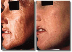microdermabrasion-before