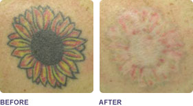 tatto_removal flower