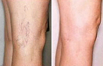 veins-before-and-after-2