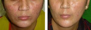 fractional skin resurfacing face