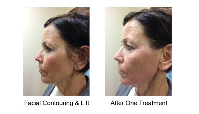 accent laser for face